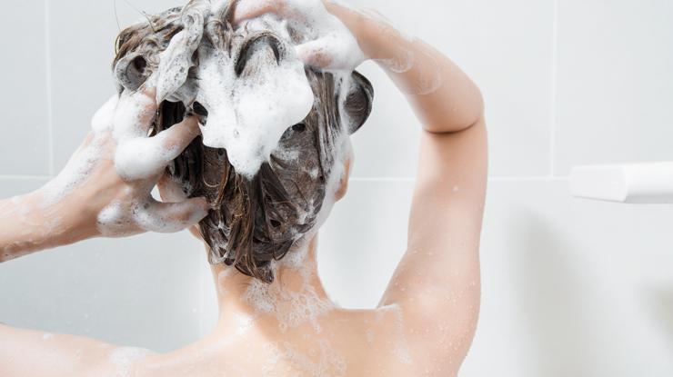 脂漏性皮膚炎対策にシャンプー